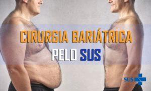Cirurgia Bariátrica pelo SUS 2022